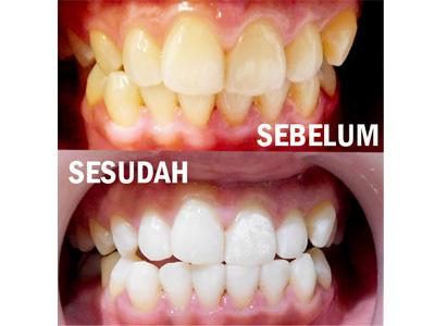 Shiny Smile Aesthetic Dental Clinic By Shiny Smile Aesthetic Dental