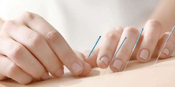 acupuncture-activity_image-b-B1Z_n603r.jpg