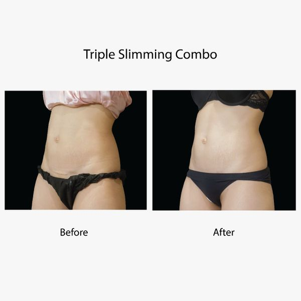 Lumiere Slimming Combo (16x)