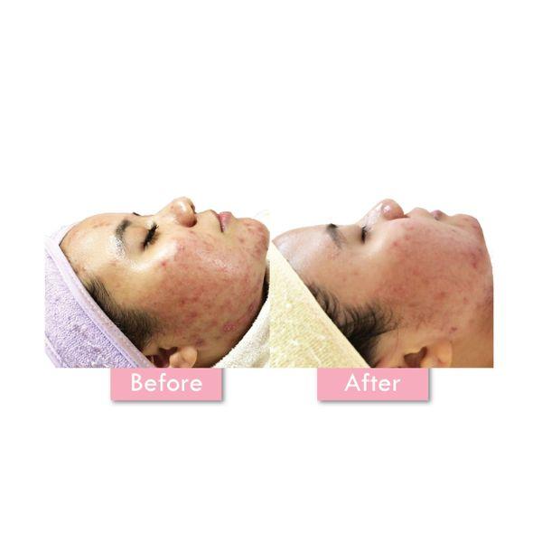 Korean Glass Skin Facial (4x)