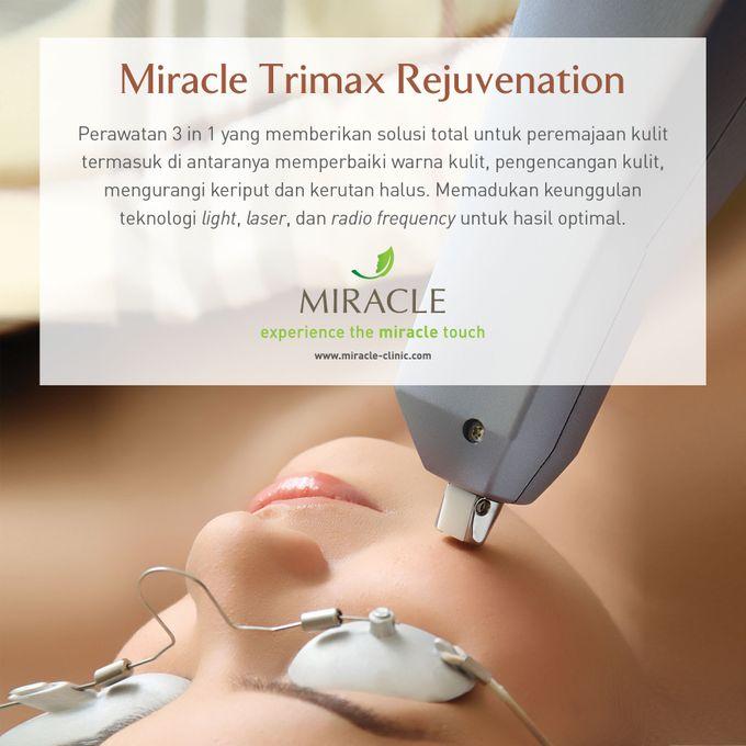 Perawatan Nina Zatulini di Miracle Jakarta (Prewedding) by Miracle Aesthetic Clinic - 002